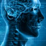 Radiology Skull Image